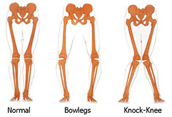 Normal vs. Bowlegs vs. Knock-Knees