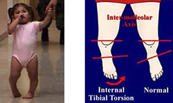 Tibial Torsion In-Toeing