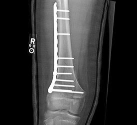 Distal Femur Fracture – Post Op