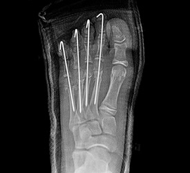 Metatarsal Fracture – Post Op