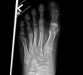 Metatarsal Fracture – Recovery