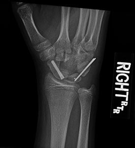 Right Scaphoid Fracture Post-Op
